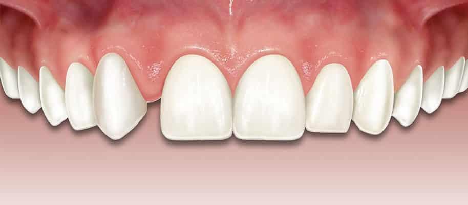 clinica dental Ica